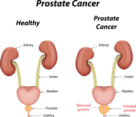 PROSTATE CANCER: A PATIENT PERSPECTIVE AND EXPERIENCE